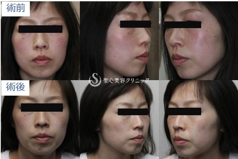 症例写真 術前術後比較 ライムライト