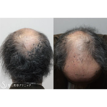 症例写真 術後 毛髪再生療法 グロースファクター再生療法