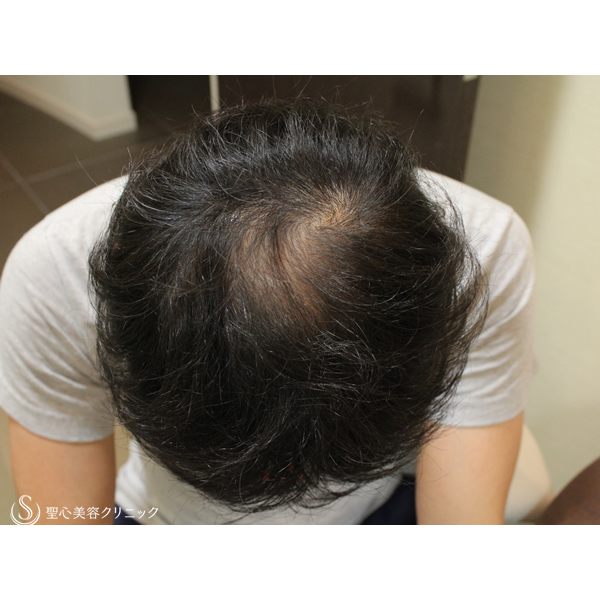 症例写真 術後 毛髪再生療法 アボルブ