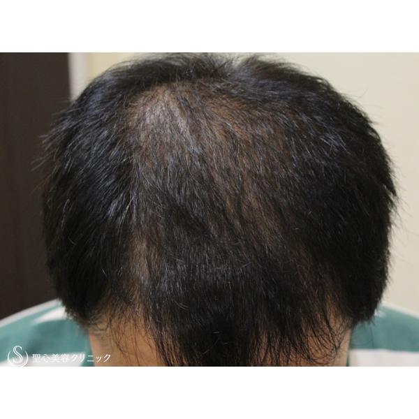 症例写真 術後 毛髪再生療法 プロペシア