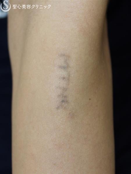 症例写真 術後 タトゥー除去 QスイッチYAGレーザー