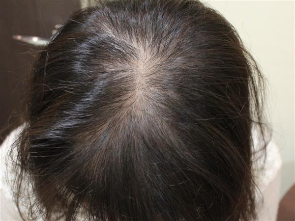 症例写真 術前 グロースファクター再生療法