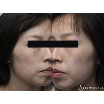 症例写真 術後 美容皮膚科 そばかす・赤ら顔