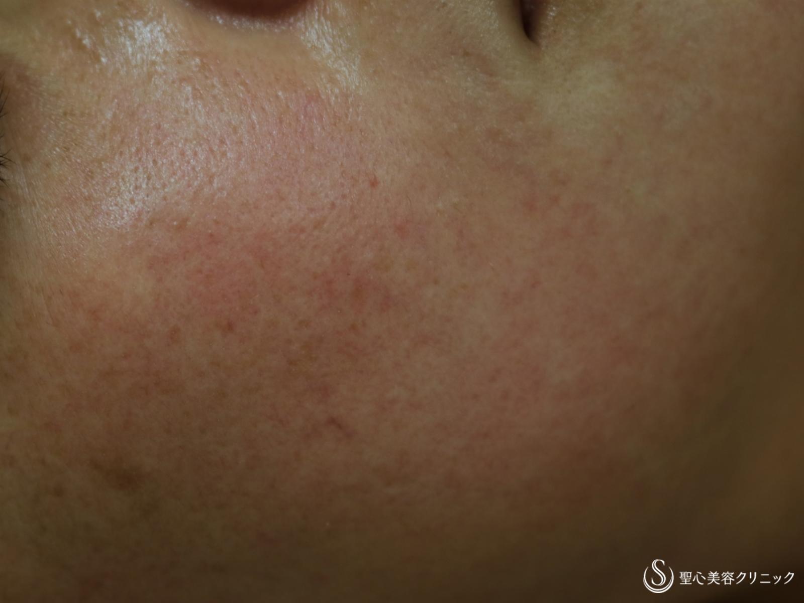 症例写真 術前 ヒト脂肪幹細胞上清クリーム+トラネキサム酸内服