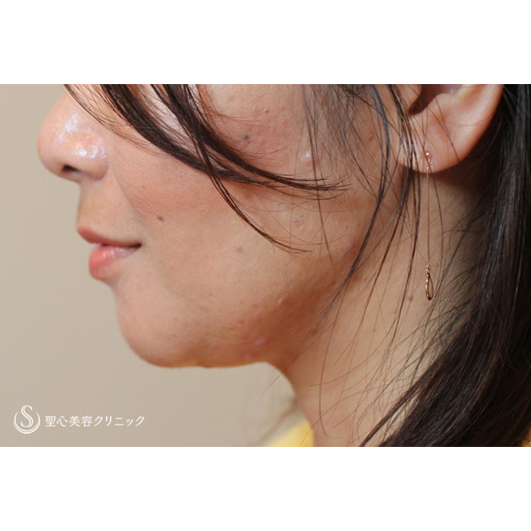 症例写真 術前 美容皮膚科 たるみ