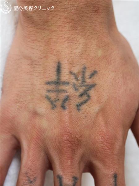 症例写真 術前 タトゥー除去 QスイッチYAGレーザー