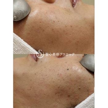 症例写真 術後 美容皮膚科 美肌