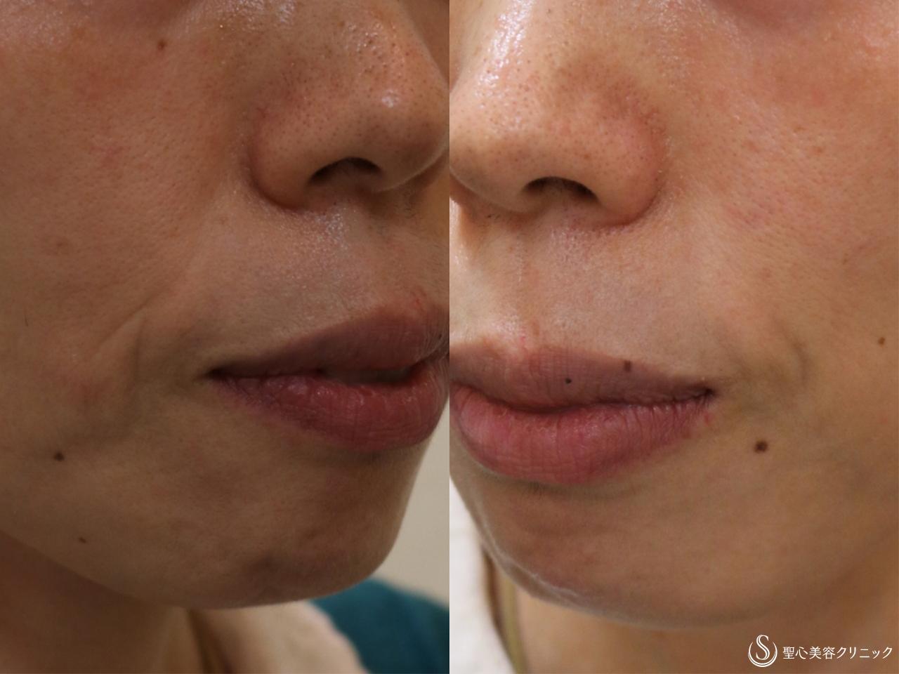 症例写真 術前 プレミアムPRP皮膚再生療法+ヒアルロン酸の除去+ヒアルロン酸注入