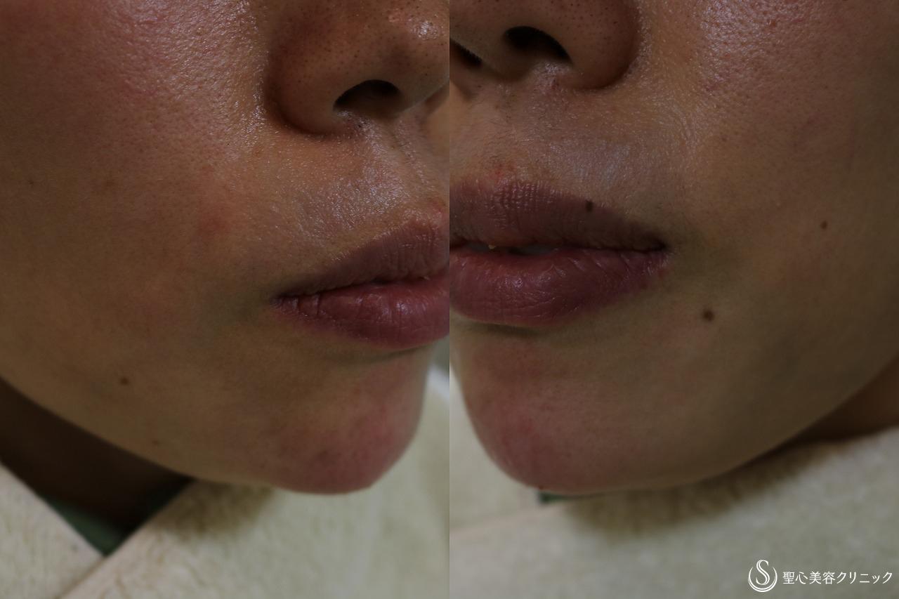 症例写真 術後 プレミアムPRP皮膚再生療法+ヒアルロン酸の除去+ヒアルロン酸注入