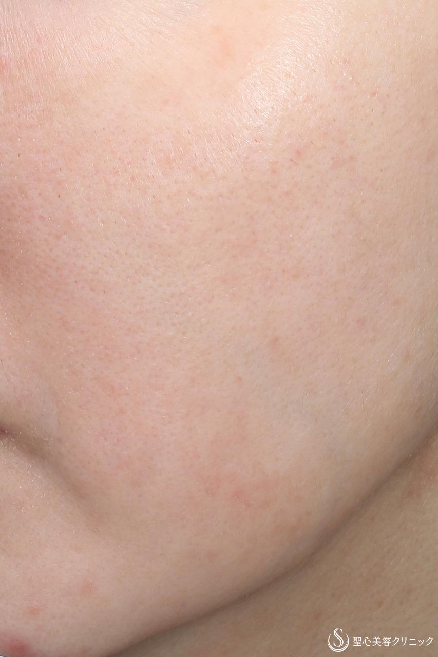 症例写真 術後 レーザー+ライムライト+ヒト脂肪幹細胞上清クリーム